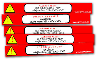 Allergy wristbands